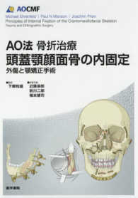AO法骨折治療頭蓋顎顔面骨の内固定 外傷と顎矯正手術