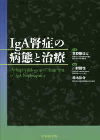 IgA腎症の病態と治療 = Pathophysiology and Treatment of IgA Nephropathy