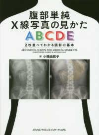 腹部単純X線写真の見かたABCDE 2枚並べてわかる読影の基本