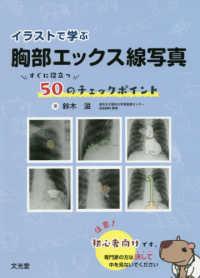 イラストで学ぶ胸部エックス線写真 すぐに役立つ50のチェックポイント