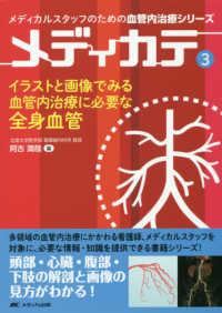 イラストと画像でみる血管内治療に必要な全身血管 メディカテ : メディカルスタッフのための血管内治療シリーズ