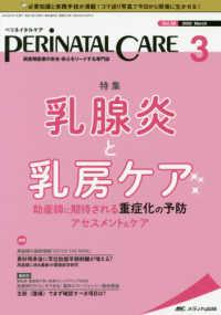 乳腺炎と乳房ケア ペリネイタルケア